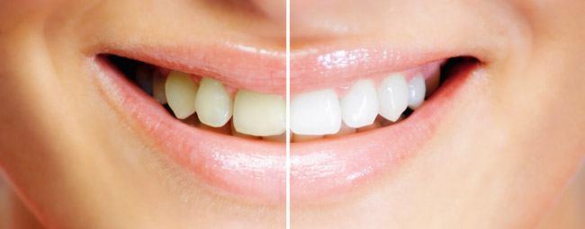 teeth whitening santa rosa, ca